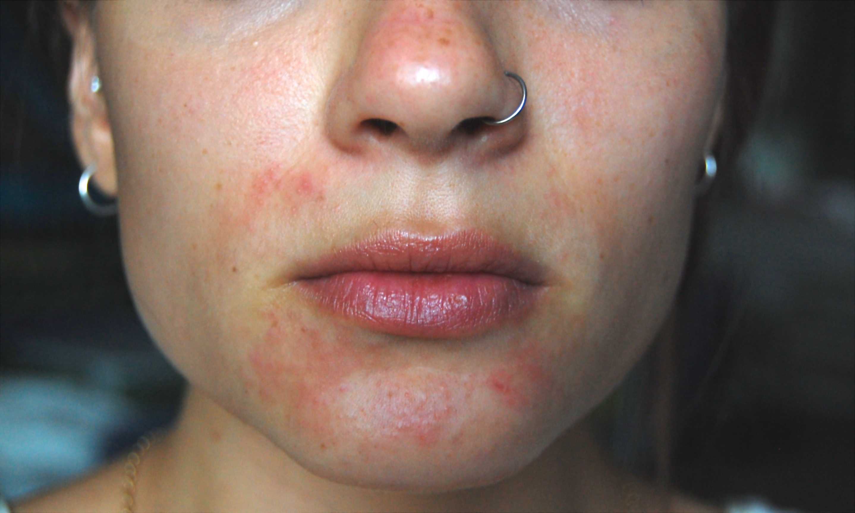 topical steroids for acne